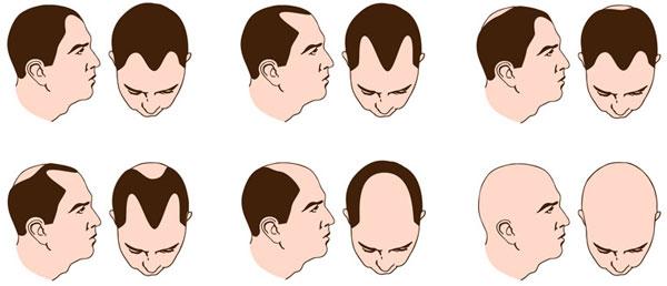 Ученые выяснили, почему мужчины лысеют